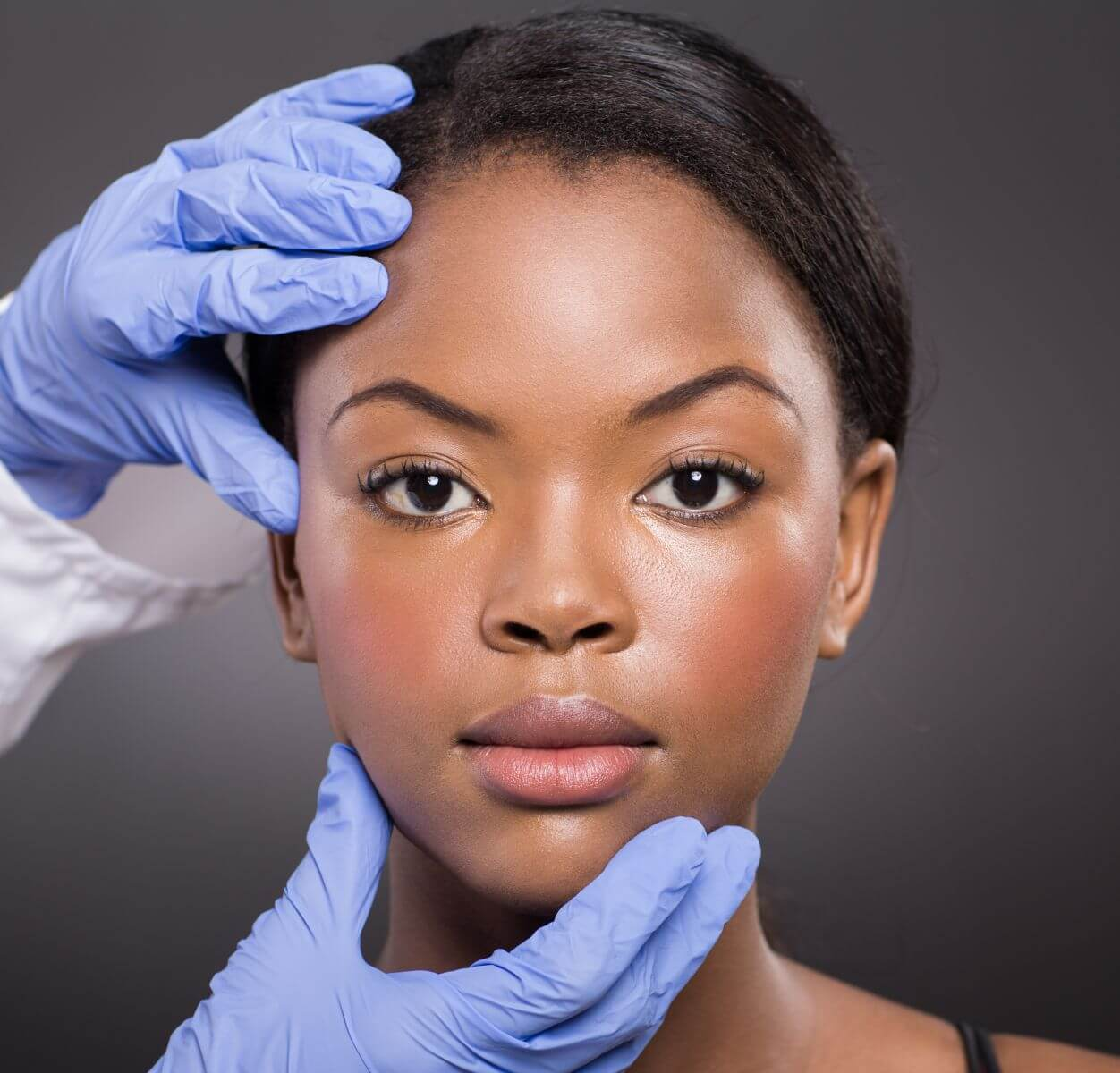clear skin Tampa Facials for men and women with darker skin tone who struggle with acne, acne scars, need a peel treatment for darker skin pigment isuues