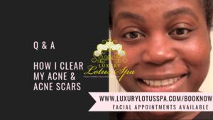 Cost os acne scar treatment Fl