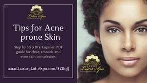 tips-for-acne-acne-scars-prone-skin, best acne scars Facial Treatment.