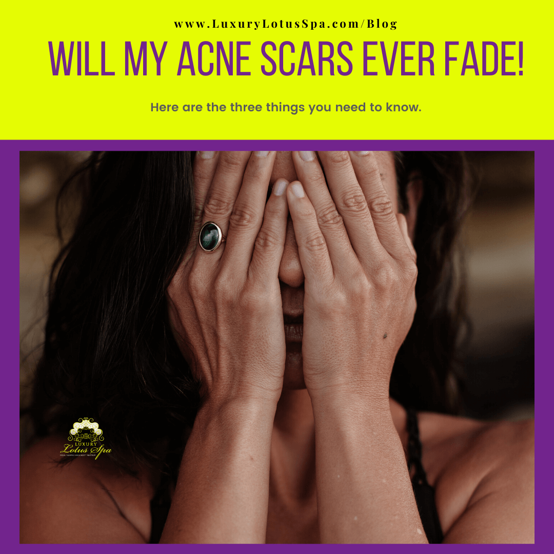 will my acne scars ever fade? skin care tips and products for black women with acne scars, Luxury Lotus Spa online store spa boutique helping melanin beauties clear up acne and acne scars naturally for men and women with darker skin tone african american hatian jamaican, afro latinas